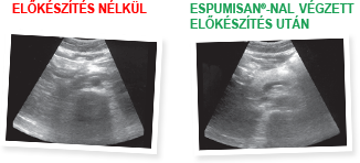Hasi ultrahang